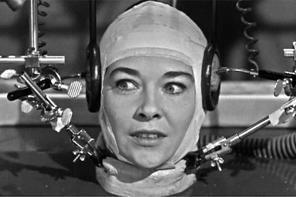 Greffer une tête humaine pourrait être possible d'ici deux ans !