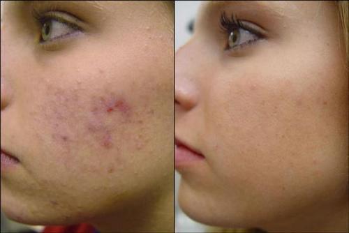 comment faire disparaitre les cicatrices