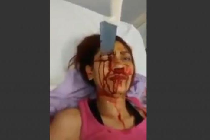 Célèbre Vidéo) Une femme survit avec un couteau de cuisine planté dans la  BY86